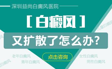 深圳白癜风有什么早期征兆