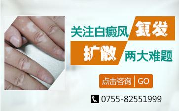深圳白癜风有什么具体的症状表现呢